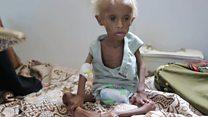 1 ปีที่ผ่านมากับชะตากรรมหนูน้อยซาลีมในเยเมน