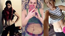 The selfie campaign urging you to 'get your belly out'