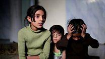 الحصار يترك أطفال الغوطة يتضورون جوعا