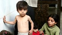 सीरिया में भूख से लड़ते बच्चे