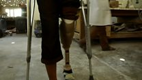 Inside Yemen's prosthetic limb factory