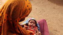 कुपोषण की चपेट में है गुजरात का ये गांव
