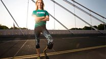 'Thieves stole my £30,000 prosthetic legs'