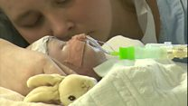 Eight-week-old Charlie gets new heart