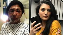 Resham Khan 'pities' man who threw acid on her