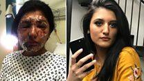 ロンドン酸攻撃の被害者、犯人が「ひたすら哀れ」