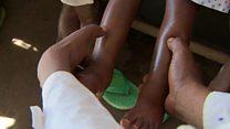 En RDC, la malnutrition fait des morts au Kasaï