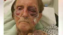 Reward offered after 'vicious' attack