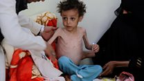 Starvation in Sanaa: 1,000 days of Yemen's civil war