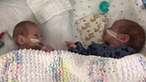 Premature boys home in time for Christmas