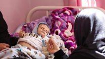 ယီမင်မှာ ဝမ်းရောဂါကူးစက်ခံရသူ ၁ သန်းရှိ