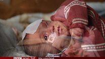 सीरिया: लड़ाई में फंसे बीमार बच्चे