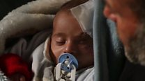 Race to rescue injured Syrian baby