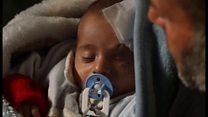 シリアの赤ちゃん砲撃で片目失い 人道危機の象徴に