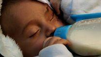 A corrida para salvar bebê de 3 meses que perdeu olho em bombardeio na Síria