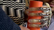 Woman with bionic hand can feel objects