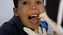 ماهو مرض الدفتيريا المنتشر في اليمن