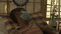 ရိုဟင်ဂျာ ဒုက္ခသည်စခန်းမှာ ဆုံဆို့ရောဂါဖြစ်ပွား