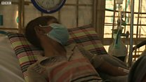 Небезпечна інфекція: дифтерія в таборі рохінджа
