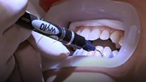 Illegal whitening treatments exposed