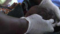 Mortalité néonatale toujours importante en Afrique sub-saharienne