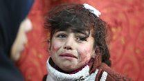 """""""Por lo menos en el cielo hay comida"""": el infierno de los niños bajo las bombas de Guta, en Siria"""