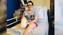 """""""Decidí amputarme la pierna para recuperar mi vida después de 6 años de sufrimiento"""""""