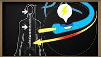 Avancée dans le traitement de la sclérose en plaques