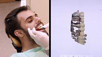رسم ثلاثي الأبعاد لفم المريض لتصميم قوالب تطبع ايضا عبر طابعات ثلاثية الابعاد