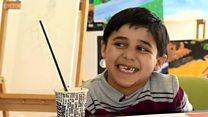 'มุสตาฟา' เด็กพิการกำพร้าจากสงครามซีเรีย ผู้ไม่ย่อท้อต่อโชคชะตา