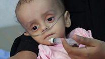 यमन में हूथी विद्रोहियों और सेना की लड़ाई के तीन साल पूरे