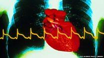 راز دانش: ارتباط احتمالی آنفلونزا و حمله قلبی