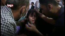 シリアの化学兵器疑惑 子供たちにも被害