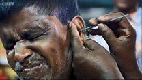 ช่างทำความสะอาดหู อาชีพที่กำลังหายไปในบังกลาเทศ