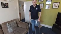 'I paid to have my leg cut off'