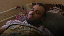 يوم عصيب في مستشفى الشفاء بغزة