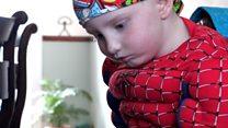 Spider-Man mask makes cancer patient braver