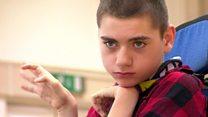 El niño con parálisis cerebral que enseña a que no le tengan miedo