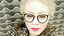"""""""On nait albinos, on vit albinos, on mourra albinos"""""""