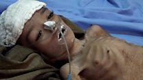 यमन : बेमौत मरते बच्चे