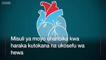Mambo muhimu kuhusu maradhi ya mshtuko wa moyo