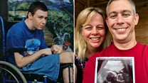 From locked-in syndrome to being a dad