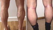 Why I got calf implants: 'There was no other option'