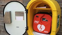 Dad saves son's life with defibrillator