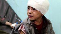 التحالف الدولي يقصف حافلة في اليمن ويقتل 29 طفلا