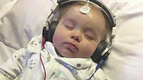 Глухой годовалый малыш впервые услышал звуки