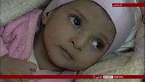 یک میلیون کودک یمنی دیگر در خطر گرسنگی