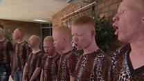Albinisme : Le cri du choeur