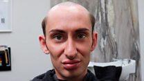 'I lost my hair when my mum died'