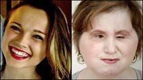 El increíble caso de la joven que recibió un trasplante de cara después de intentar quitarse la vida